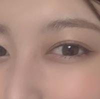 この目は目頭切開してると思いますか?