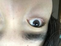 アイプチで瞼が伸びてしまいました。 100均のアイプチ(のりタイプ)を2回使いました。 1度目はとても上手くいった為、2度目もやってみたら、なかなかしっくり来ず、何度も水でゴシゴシ落としてやり直しました。 そのせいなのか、瞼の皮膚がたるんでキツい目元になってしまいました。 毎日継続してたなら伸びるのも分かりますが、ちょっと使って、何回かやり直ししただけで、伸びるとは思いませんでした。...
