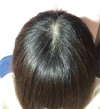 最近、髪の毛の生え際が薄くなっていると思い、 すごく心配です。 (20代なので生え際が目立つのは辛いです) というのも、元々若白髪が多く、 特に学生時代は白髪染め等繰り返しているため、 思い当たる節があるの...
