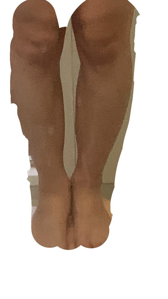 これはo脚ですか?
