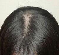 抜け毛について 18歳女です。抜け毛がひどいです。一応写真を載せておきます。 シャンプーをした時、リンスをした時、髪を乾かす時に主に大量に髪の毛が抜けます。 生まれた時から、髪が細く薄毛に見えてしまうよ...