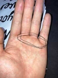 チンニングでの手の痛み チンニングを行うと写真の部分が痛くなります。 皮膚も硬くなりました  何か改善策はないですか?  慣れるしかないのでしょうか?