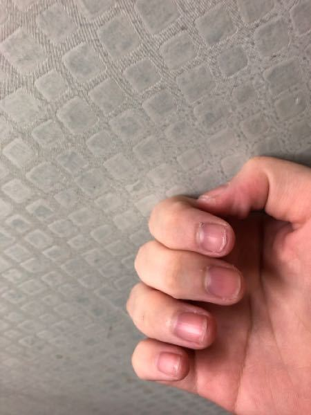 19歳女ですが、爪噛み癖が治りません。小学校低学年頃からずっと爪を噛んでます。最近は昔ほどではありませんが、疲れた時やストレスがかかった時に無意識に爪を噛んでしまっています。お陰で爪がズタズタで...