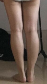 見苦しい写真あります。足が太くて悩んでいます。 154cmの女です。 私の足は太ももに隙間もないし、お尻の下に肉が溜まっているし、ふくらはぎが太いしって悩みだらけです。この足はO脚ですか? X脚ですか??ど...