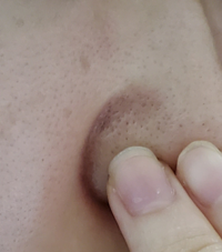 毛穴がかなり大きく広がっています。 こんな毛穴でもケアだけで小さくなりますか? どのようなケアをすればよいでしょうか?  洗顔フォームで洗顔→拭き取り化粧水→高保湿化粧水→乳液→クリームでテッカテカにして寝ています。混合肌です。  アドバイス頂けたらと思います。