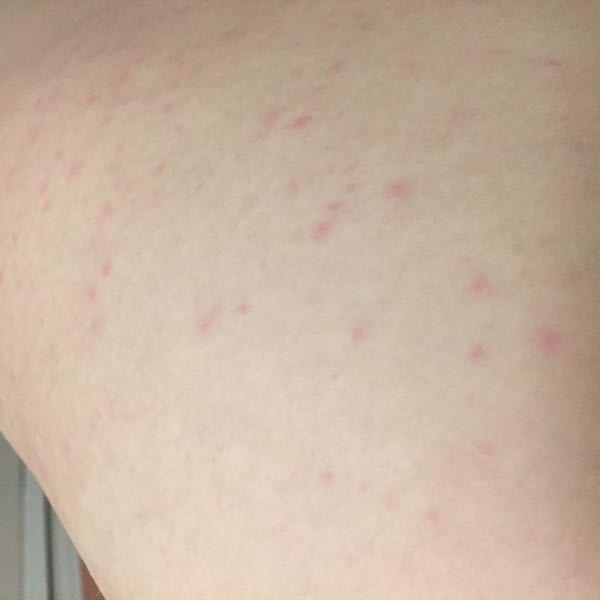 アレルギー かゆみ 差 寒暖