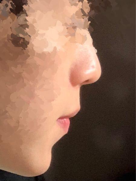 Eラインについて 僕は横顔が少しコンプレックスです。多分鼻が低いせいか薄っぺらい顔だなって思ってしまうんだと思います。 また顎も少し出すぎてる気がしてしゃくれなんじゃないかって思うこともあるんで...