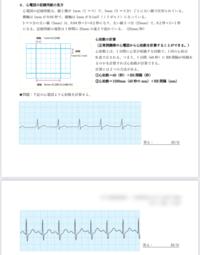 心拍数の計算の仕方を知りたいです。 看護の大学の宿題なのですが、よく分かりません。 RR間隔がなんなのかと、この問題の答えを教えて欲しいです。 RR間隔(秒)とRR間隔(mm)は何が違いますか?