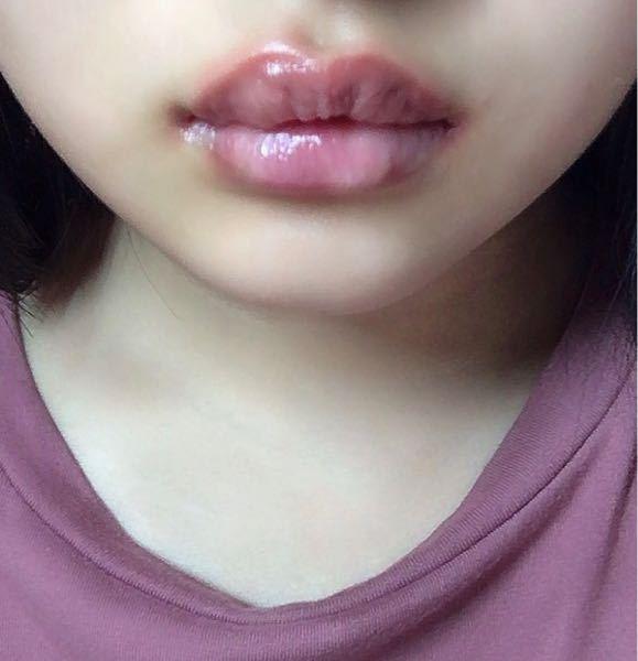 痛い パイナップル 唇