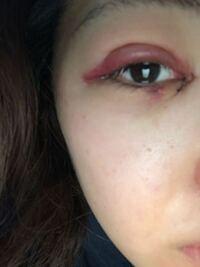 湘南美容外科で 目頭切開とクイックコスメティークダブルしたんですけど2日目でこれくらい腫れてるのですがどうしたらいいですか?