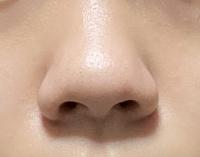 鼻を小さくしたいです。 この画像の鼻なのですがどうすればいいですか?