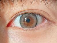 蒙古襞がないと言われましたがよく分からりません。 この目は蒙古襞ありますか? (カラコンが合ってないのは気にしないでください)