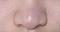 これは団子鼻ですか?ニンニク鼻ですか?