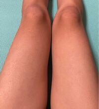 膝の黒ずみに悩んでいます。 ミニスカをよく履くのですが、スカートを履いた時の自分の黒ずみにいつもガッカリしています。 黒ずみを治すオススメのクリームなどありますか、?
