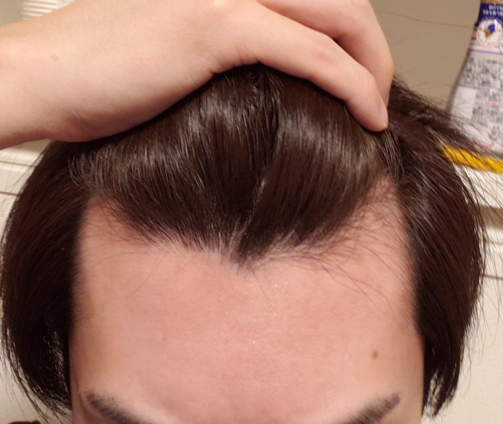 M字ハゲについて悩んでいます。 今まで気にしてなく髪をよく見てなかったのですが、最近になって前...