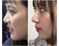 さんこいちの古川優香ちゃんに対しての質問です。  前々から動画は、何回か見ていたんですが、 ある動画のコメントで整形がなんたらみたいな書き込みがあり、気になり調べてみたところ古川優香ちゃんは、整形し...