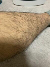 足毛に悩んでます。剛毛ですか?これは除毛クリーム使っても通用しませんかね?