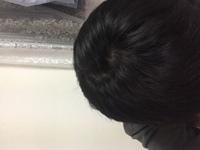 髪の分け目について  つむじが2つあります。 前髪の分け目がどっちなのかわかりまけん。 どっち側にわかるのが正解ですか?