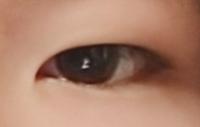 この目はどうやったら二重になりますか❔整形ですか❔