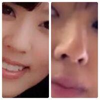 左と右は同一人物なんですけど、鼻が違うと思いませんか?整形でしょうか?