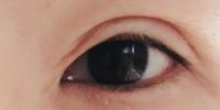 片目だけ埋没法(2点)で手術をして8日が経過しました。写真のような状態でして二重のラインが変だしクッキリし過ぎです。 これはまだ腫れてますか? 時間の経過と共に自然な状態になりますか?  不安なので助...