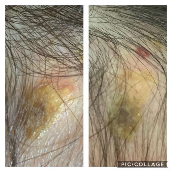 こんばんは。 3歳の子供の頭の瘡蓋なのですが、 左が一週間前 ↓ 右が昨夜です。 治癒の経過として順調でしょうか? 3日前に寝ぼけて引っ掻いたようで右の写真の上の方にある赤い点はその時にでき...