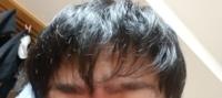 最悪の髪型にされました。ミディアムのマッシュくらいだったのですが、 少し軽くして刈り上げて 長さはあまり変えないでと言ったら 根元からザクザク行かれました。これ、やばくないですか!?? ハゲやん。 重くし たいのですが、スカスカの毛先は切った方がいいのでしょうか?これ、普通に眉毛が見えなくなるくらいまでの長さ、重さにするのにどれ位でなりますかね?ベリーショートにして、重くして伸ばすってのも、...