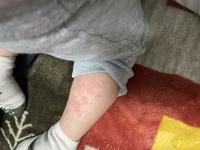 子供の蕁麻疹についてです。 2歳5ヶ月の男の子です。  先日12日から2日間にわたり、38〜40.7度の高熱を出し、小児科受診しました。 風邪との診断で、飲み薬処方され飲ませています。 13日の夜中に40.7度まで...
