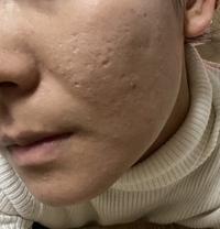 ※閲覧注意(汚肌)  開き毛穴、クレーター治療をしたいと思っています。 このような肌の場合、ヴァンパイアフェイシャル、ダーマペンなど何がおすすめか詳しい方教えてください。 その施術のある美容皮膚科を探...