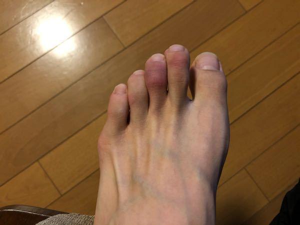 汚い足の写真失礼します… 数日前から足の中指が腫れて痒いんですけど、これはなんでしょうか…? 病院に行くべきですか?