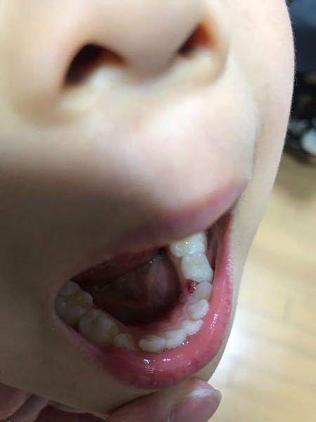 5歳の子どもが痛みはそんなになく、食事もできてはいますがら歯と歯の間にこのようなものが、、、なんでしょうか?歯医者にはもちろん行くつもりですが、、、