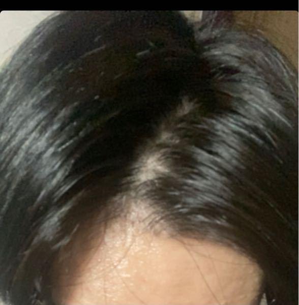 薄毛でしょうか?