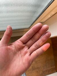 これはなんでしょうか? 美容師アシスタントです もう一年くらいやってますが、 最近カラー剤の調合をする際にOXY?がついてか ヒリヒリピリピリしてこのように皮が浮き上がります 今までこんなことなかったので焦ります どうしたらいいですか?