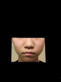 女子中学3年生です 顔の歪みと団子鼻に悩んでいます(;_;) 写真汚いですが貼りました(;_;) 団子鼻の解消法を色々調べてマッサージや鼻のクリップなどをつけているのですがそれは本当に効果があるのでしょうか?? 顔の歪みはたるんでる方でガムを噛めばいいと言う記事を見たのですが本当に効果があるのでしょうか?? 教えてください(;_;)