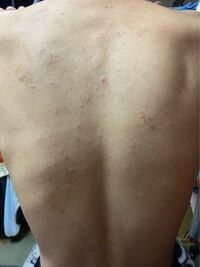 背中 湿疹 かゆい