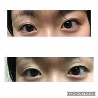 アイプチで瞼が伸びるというのは本当ですか? 私は一重でブスです。 高校に入ってからずっとアイプチをしています。 しかし最近、上手く付かなくなってきました。 下の写真の通りです。時間が経つとすぐ下の写真...