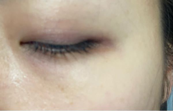 美容 色素 まつ毛 沈着 液 まつ毛美容液で目元に色素沈着する?原因は何?塗り方・使う量がポイントだった!