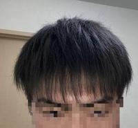 高3です、この前髪は流石に薄いですよね? ※おでこも広いです ちなみにこの前髪を厚く出来る方法はありますか?