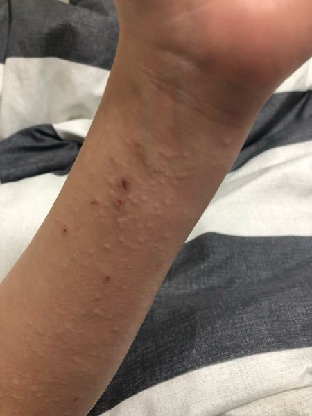 ここ最近、腕や手の甲、足にこのような湿疹?が出てきます。急に痒くなり少しかくと写真のような湿疹が出ます。しばらくすると湿疹は消えます。このような状況が2週間近く続いています。なにが原因かわかる方...