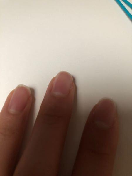 爪の形が長くてギター弾けないことに気が付きました…弦を抑えてその下の弦に指がどうしても当たってしまって開放弦ができないんです。練習していったら治りますか??