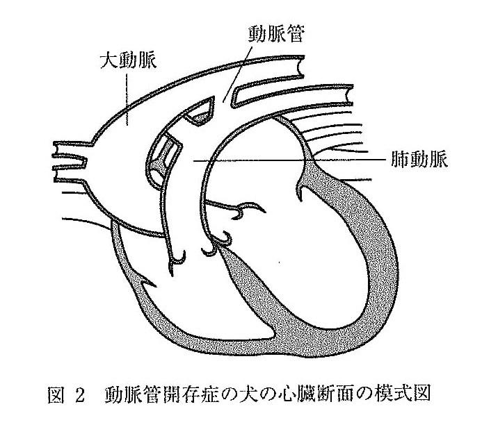 [20 日本獣医生命科学大] 胎児期(出生前)では、多くの血液は大動脈と肺動脈の間を結ぶ動脈管を介して肺をバイパスし、 肺動脈から大動脈へ流れている。動脈管は出生後、自然に閉鎖するが、図2のように閉鎖しない先天性疾患(動脈管開存)が生じることがある。 https://imgur.com/OC4g16V 動脈管開存における心臓(特に左心系)に及ぼす影響についてどのようなことが考えられるか、...