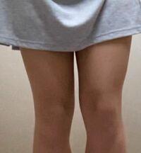 この太ももでスカートは見苦しいですか? 中学生です