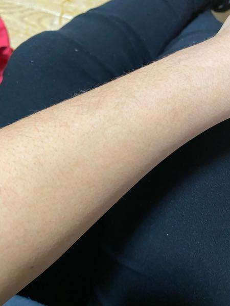 腕に毛がありすぎて悩んでます。 また指にも毛が生えてます。 ケアの仕方教えて下さい。