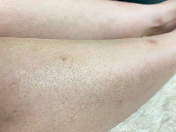 脚の毛穴の目立ち、乾燥、傷跡もたくさんあります。 毎日お風呂上がりや気づいた時に、化粧水や保湿クリームなどを塗っています。 傷跡には薬局に売っているアットノンEXクリームを使っています。 でもあ...