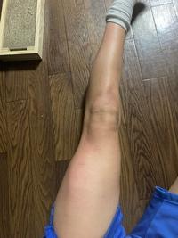 太ももが筋肉太りしてるのがコンプレックスです!どうしても細くなりたいです! 良いマッサージなどあったら教えてもらいたいなと膝が白くなる方法も教えてください!