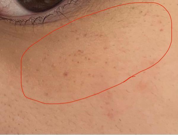 汚肌ごめんなさい。 急に丸で囲った辺りに赤いそばかすのような斑点ができました。今日の朝まではなっていなかったのですが出先のトイレで気付きました。 これは何なのでしょうか?皮膚科医に罹った方が良...