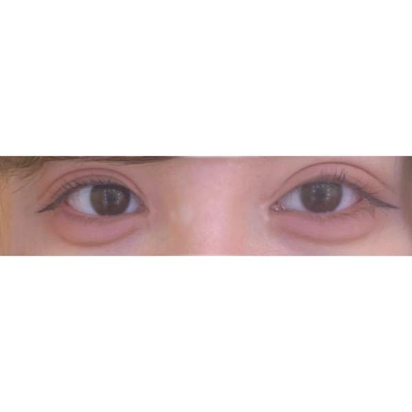 眼瞼下垂と目頭切開を一年前にしたのですが、未だに左右非対称です。 元々の二重が邪魔をしてるのもあるのですが、この左右差はやっぱり気になりますが? 目の開きも全く違うんですけどもう一年も経てばここ...
