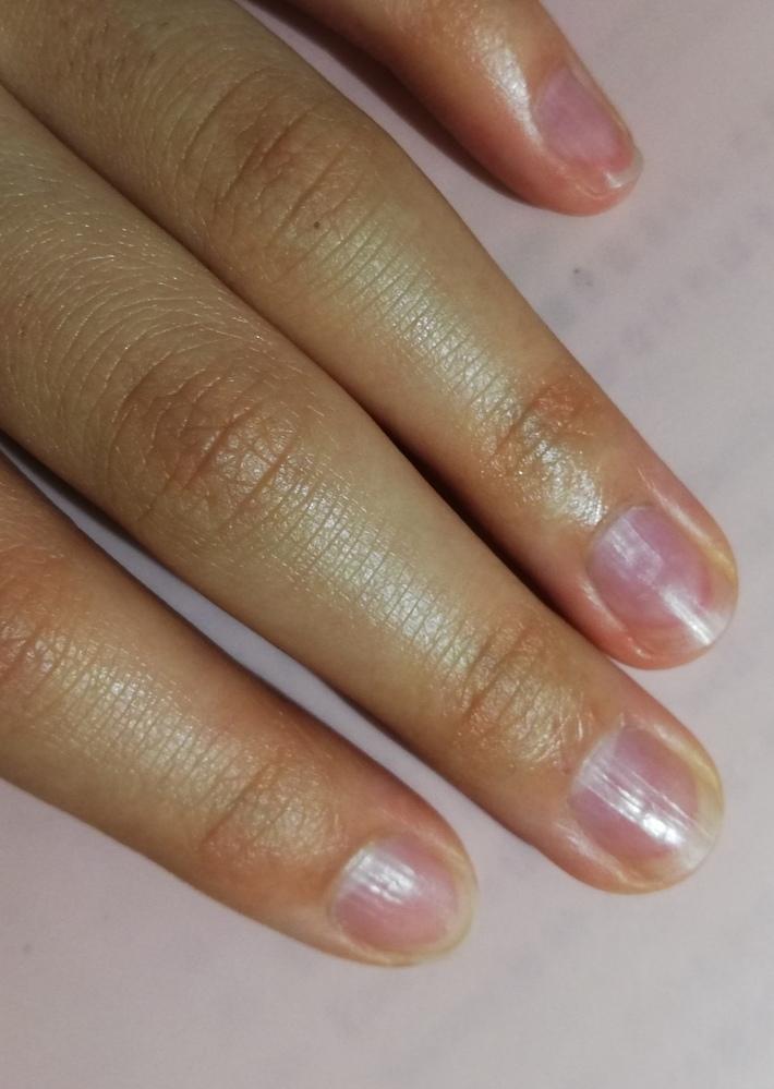爪の縦線を削る以外でなくす方法を教えてください。元から治したいです。 汚い写真でごめんなさい