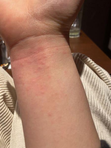 お酒を飲んだら蕁麻疹が腕に出たんですがこれはなんですか?ほんと一口飲んだくらいなんですが…