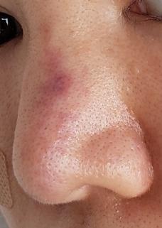 木曜日に鼻ヒアルロン酸(クレヴィエル)をしました。 赤い線にしたのですが、その横が直後から内出血を起こしました。 今は4日立ちましたが結構濃い紫になってきました。 しかし、注入場所ではなく、注入...